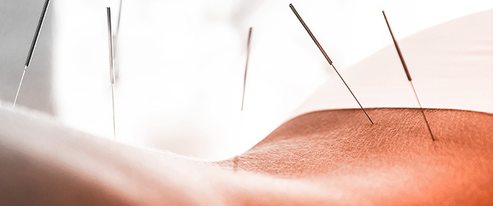 Woman getting acupuncture.